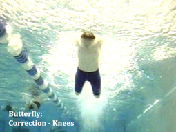 butterfly correction knees
