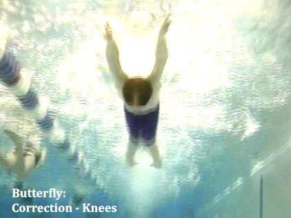 butterfly correction knees1
